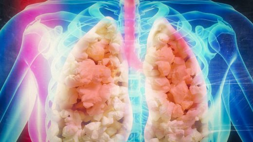 """Диацетил в электронных сигаретах и """"попкорновые легкие"""""""